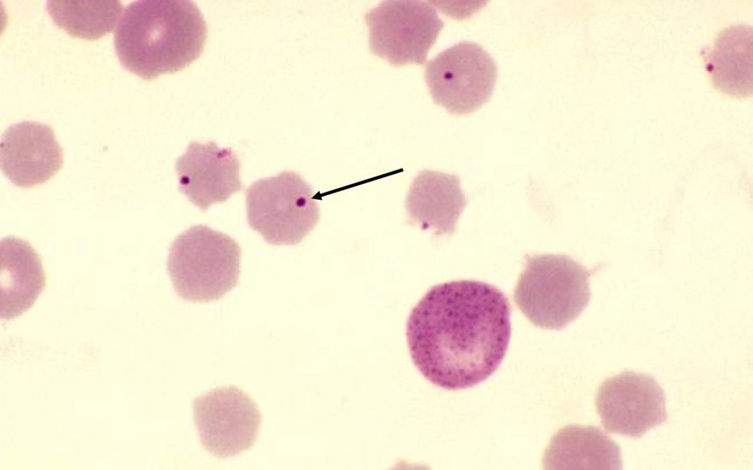 Five Things You Should Know About Anaplasmosis